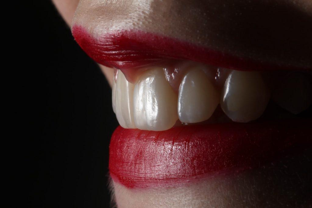 lip fillers near me